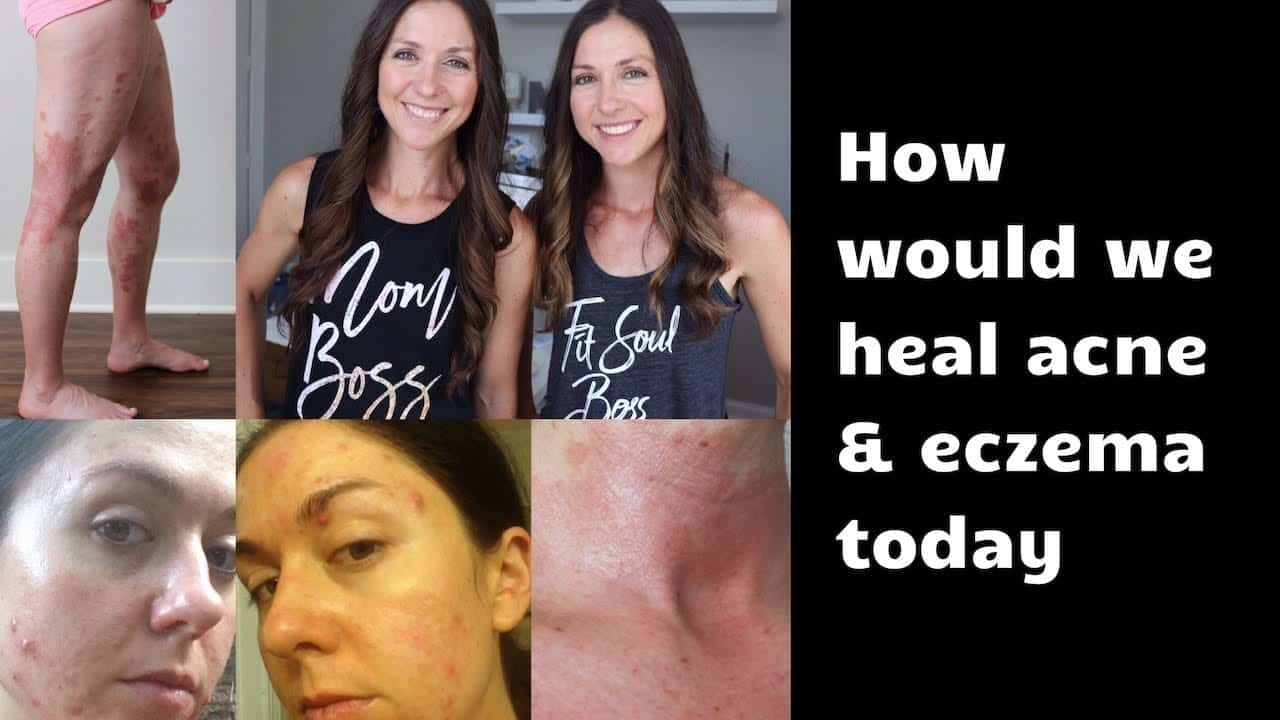 if-we-had-acne-and-eczema-now-what-would-we-do-to-heal-our-skin