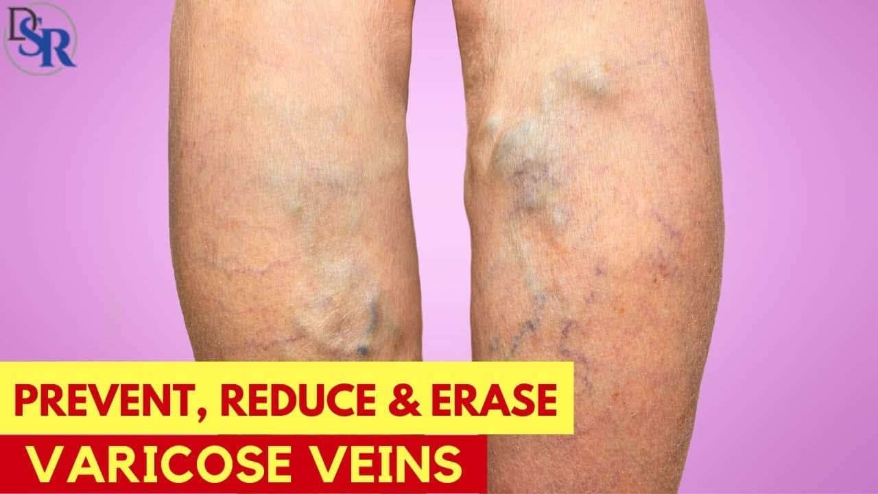 how-to-prevent-reduce-erase-varicose-veins-by-dr-sam-robbins