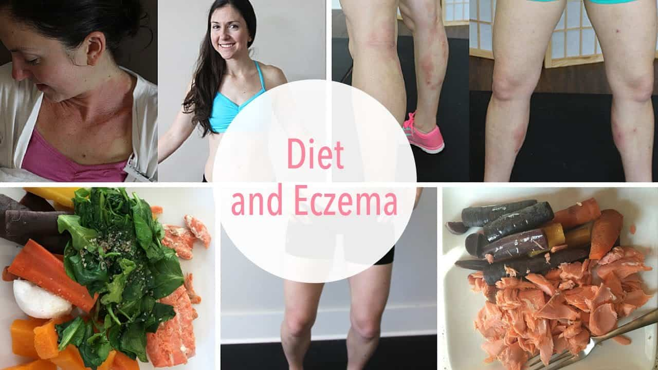 eczema-diet-what-foods-to-eat-and-not-eat-what-i-personally-ate
