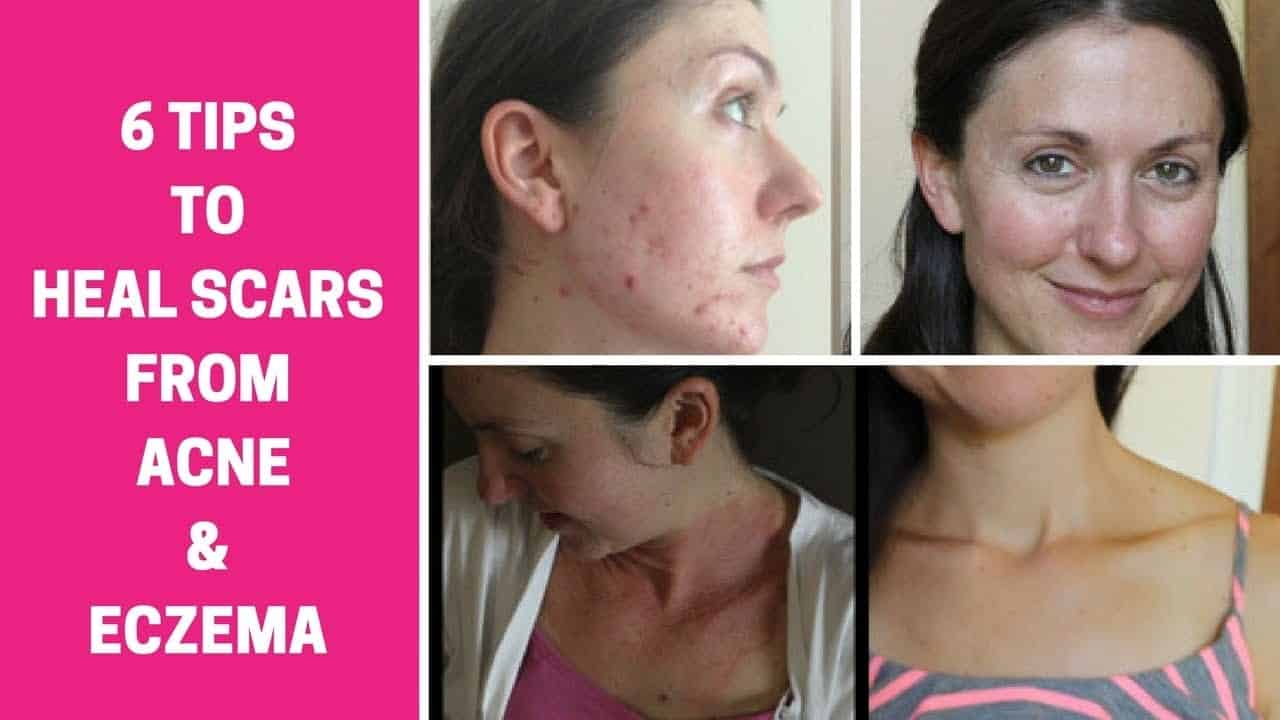 how-to-heal-acne-and-eczema-scars-and-get-glowing-skin